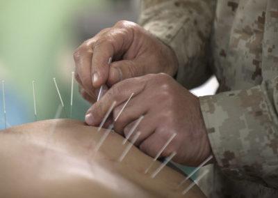 Médecin acupuncteur